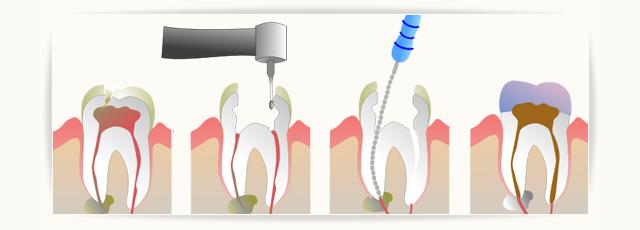 stomatologija-davidovic-endodoncija-header