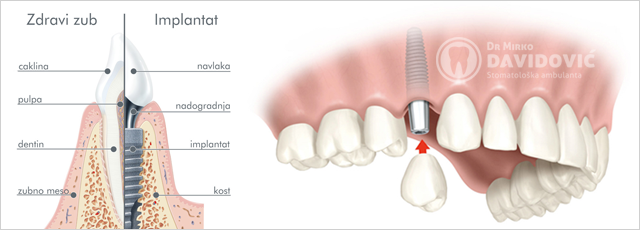Stomatologija DAVIDOVIĆ - Implantologija