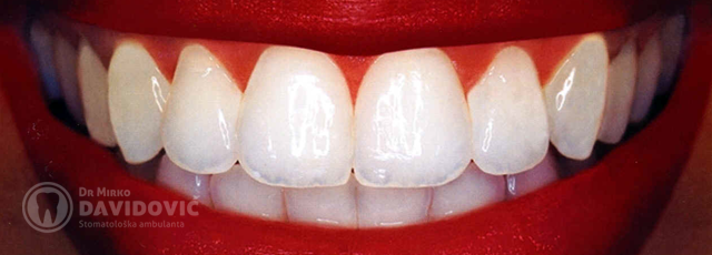 stomatologija-davidovic-izbjeljivanje-zuba-header