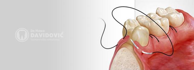 Stomatologija DAVIDOVIĆ - Oralna hirurgija