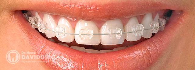 Stomatologija DAVIDOVIĆ - Ortodoncija