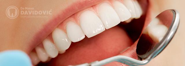 stomatologija-davidovic-popravak-zuba-header